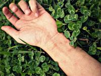 Лечение гигромы запястья без операции