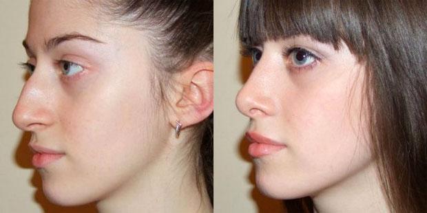 Исправление перегородки носа стоимость минск