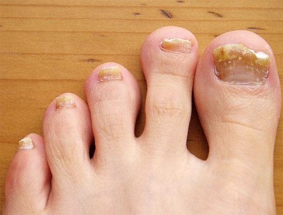 Розы на ногтях лечение