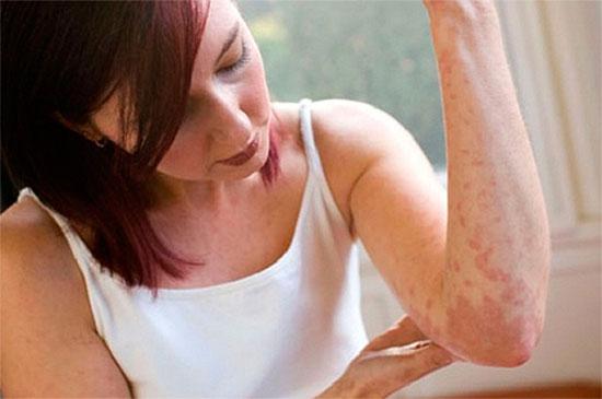 Высыпания на коже - симптомы печени