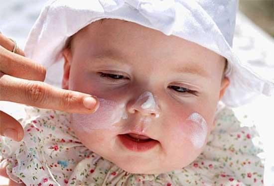 Атопический дерматит у детей - симптомы лечение и отзывы, Здоровье и красота в домашних условиях