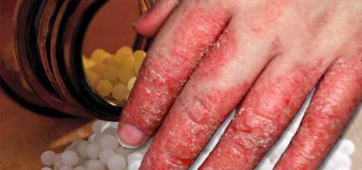 гомеопатия при дерматите