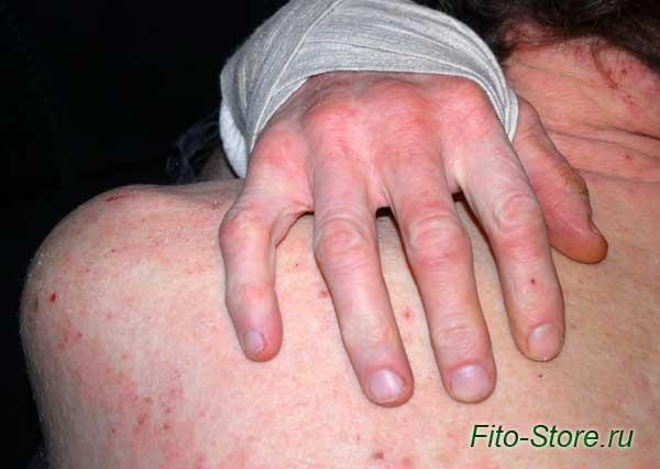 Атопический дерматит или нейродермит - симптомы