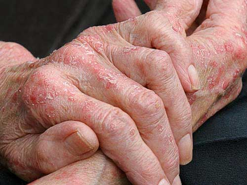 Атопический дерматит или нейродермит