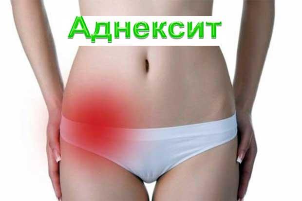 Аднексит - воспаление придатков