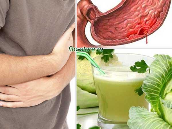 Почему болит желудок после алкоголя, что делать